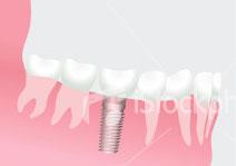 Mehr Lebensqualität mit Zahnimplantaten